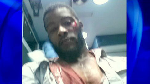 Photos of a bloodied Jamar Kennedy released by his attorney. (cbslocal.com)