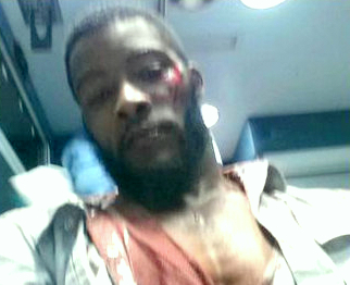 Photo of Jamar Kennedy in 2014 after his beating by police, according to his attorney. (Brew file photo)